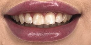 In Chair Teeth Whitening Before After 1