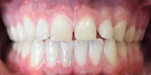 Clear Aligners Before 1