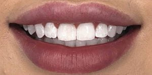 In Chair Teeth Whitening Before After 2