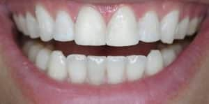 Clear Aligners After 1