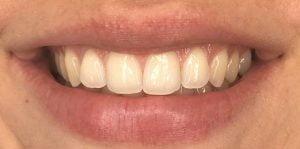 In Chair Teeth Whitening Before 1