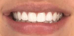 In Chair Teeth Whitening After 1
