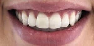 In Chair Teeth Whitening After 3