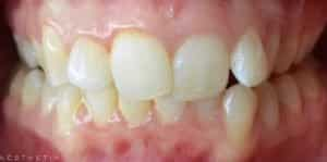 Clear Aligners Before