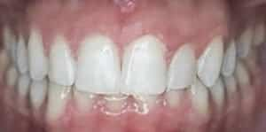 Clear Aligners After