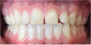 before and after teeth alignment