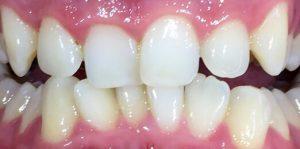 Teeth Align Before